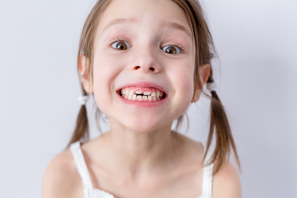 From the tooth development, this girl is probably around 8 years old!