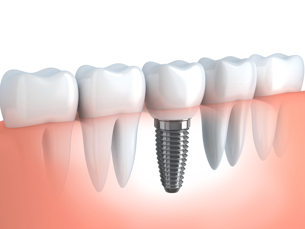 A dental implant replicates the entire structure of natural teeth.