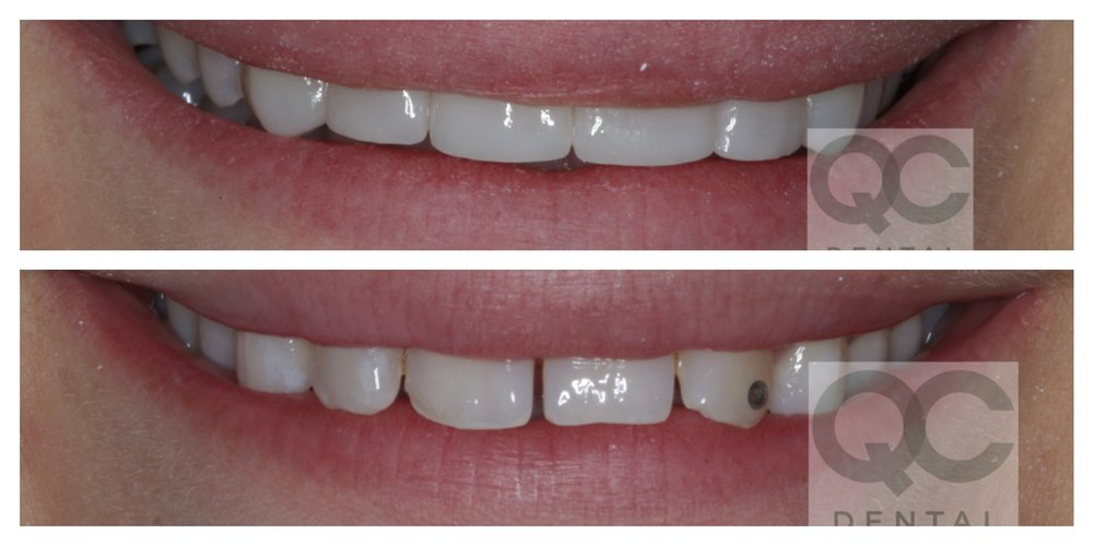 Porcelain Veneers. Completed within 3 weeks.