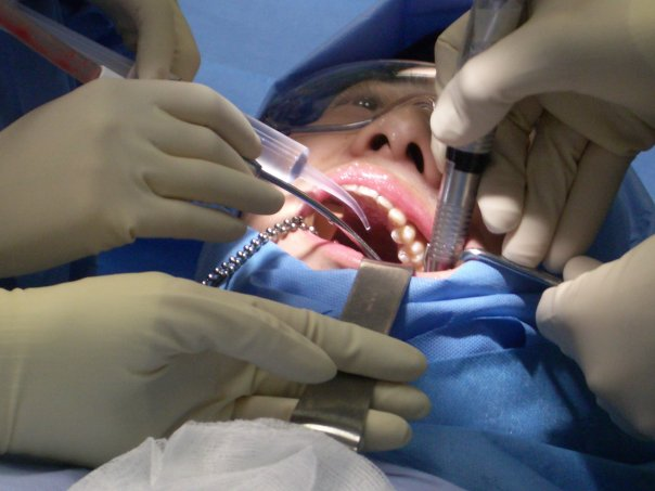 Wisdom tooth removal in progress