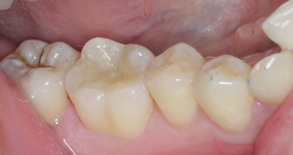 This first molar (biggest tooth in the middle of the photo) has a porcelain onlay by Dr Cheuk. It is most aesthetic and long lasting.