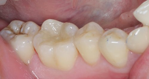 Emax porcelain onlay on lower right first molar with articulating paper marks