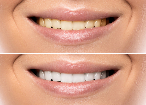 An obviously photoshopped image of teeth whitening. The smiles are 100% the same in position and size. Don't trust everything you see online! Such a dramatic difference is rarely achieved in reality.