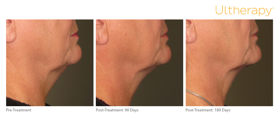 ultherapy-0234a-j_before-90and180daysafter_lower_low-re copy.jpg