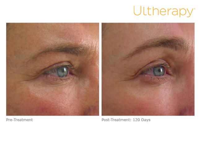 ultherapy-024g-002u_before-120daysafter_brow copy.jpg