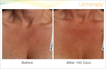 ultherapy_093-039-d-m_beforeandafter-180day_1tx_chest copy.jpg