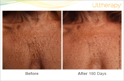 ultherapy_093-014-s-c_beforeandafter-180day_1tx_chest copy.jpg
