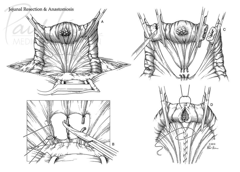 Jejunal Resection & Anastomosis