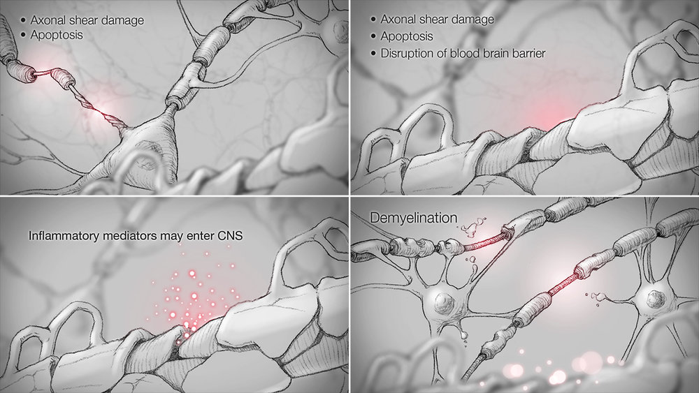 Pathogenesis of Osmotic Demyelination Syndrome