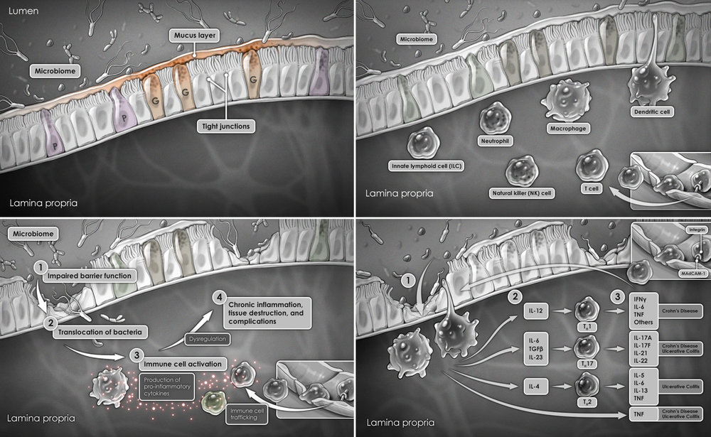 Pathogenesis of Inflammatory Bowel Disease (IBD)