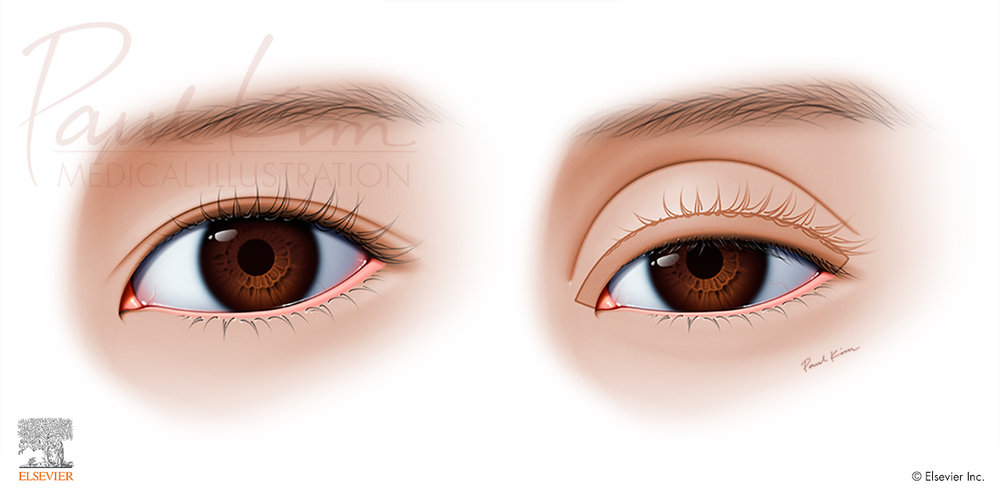Asian Blepharoplasty - Proper vs. Improper Placement of the Crease