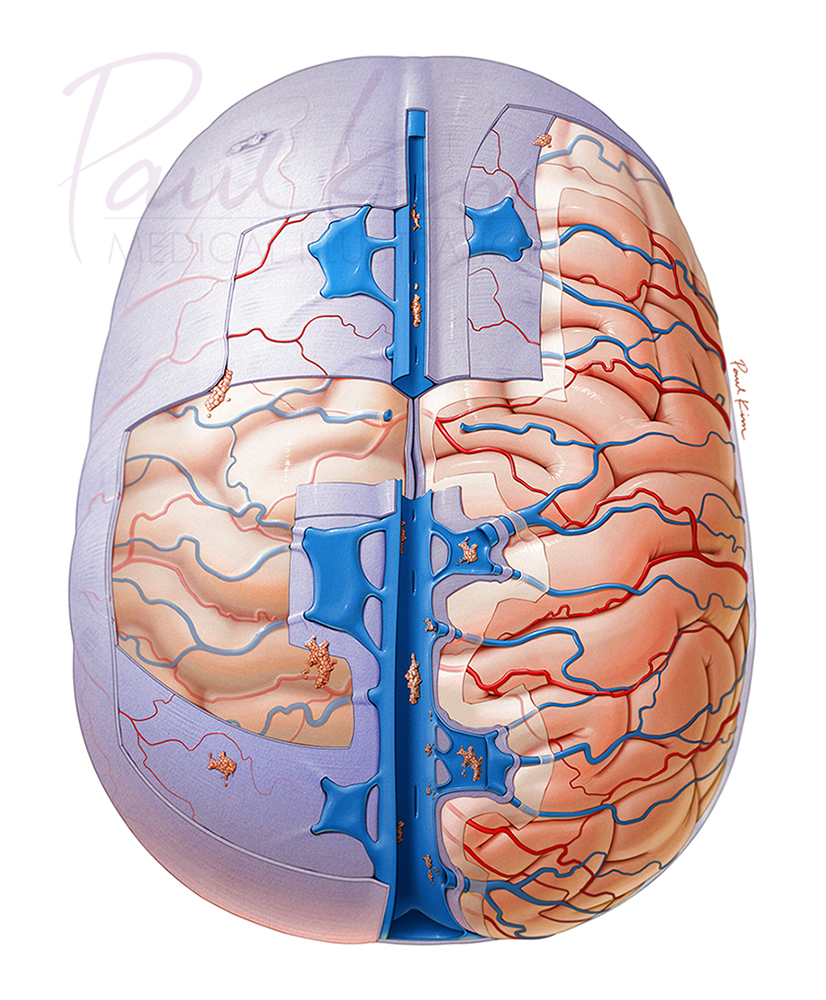 Meninges & Superficial Vessels of the Brain
