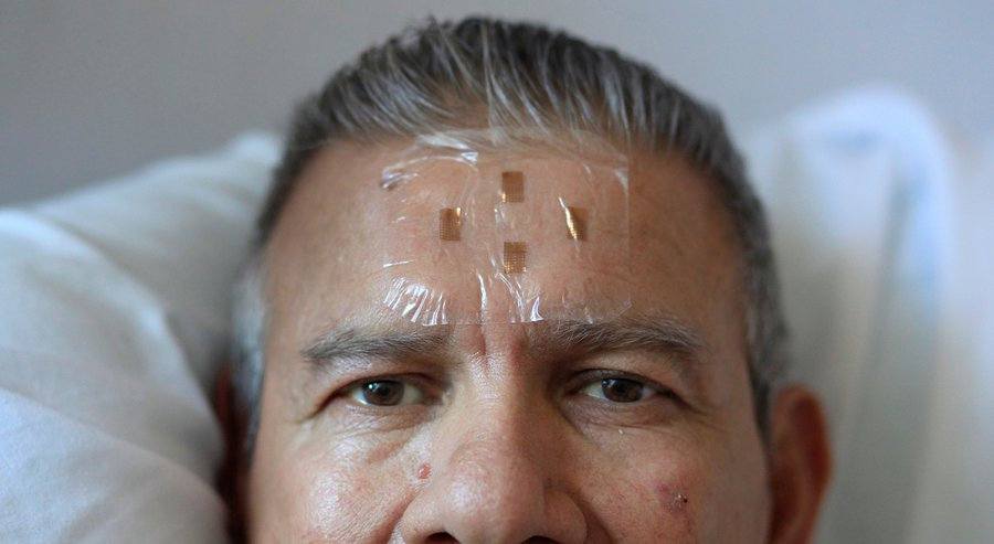 UC San Diego researcher Todd Coleman developed a flexible electronic biosensor that was recently placed on Alfonso Polanco, a 62 year-old patient at Thornton Hospital in La Jolla. The experimental biosensor is able to monitor electrical activity in the brain, helping doctors and nurses to monitor patients.— Misael Virgen
