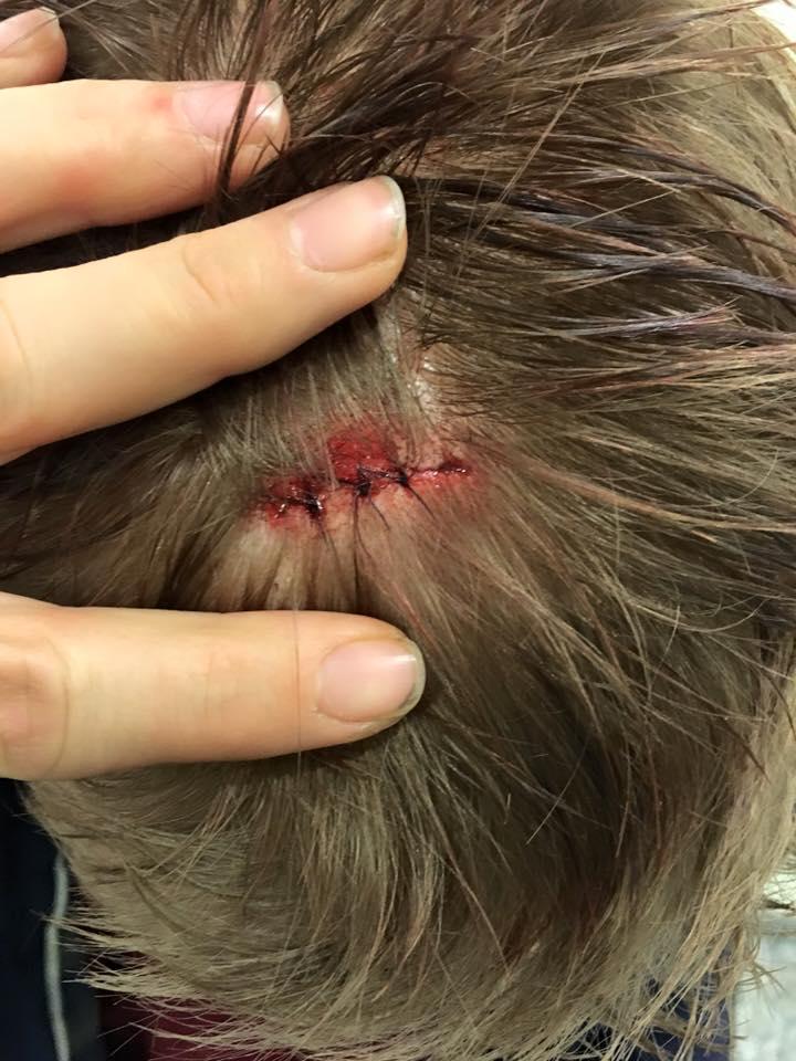 Privat foto: Christian Springborg med 3 sting
