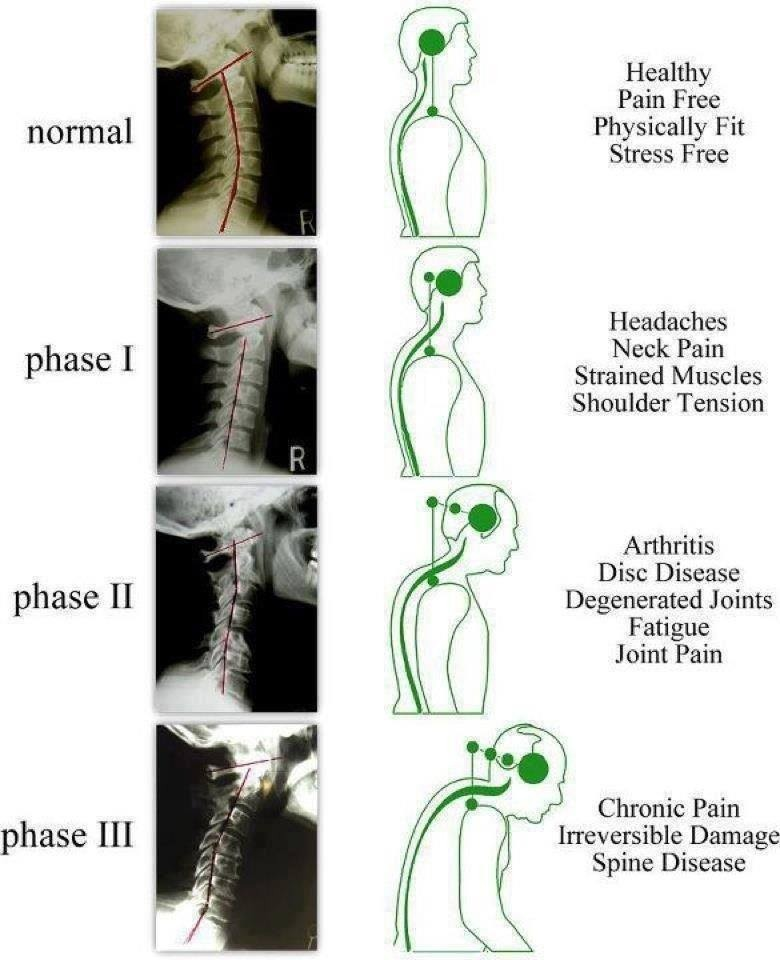 You know you could look after your spine because after all it holds your nervous system and that is you