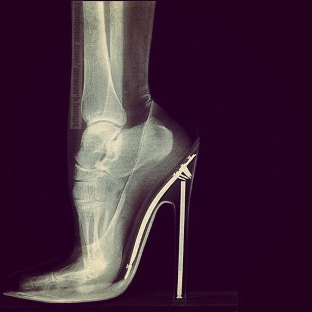 mangomoves :     #xray #heels #bones #fashion #foot #toes #feet #ouch #highheels #louboutins  #sixinch #chiropodists #podiatrists #chiropractor #bunions #metatarsal