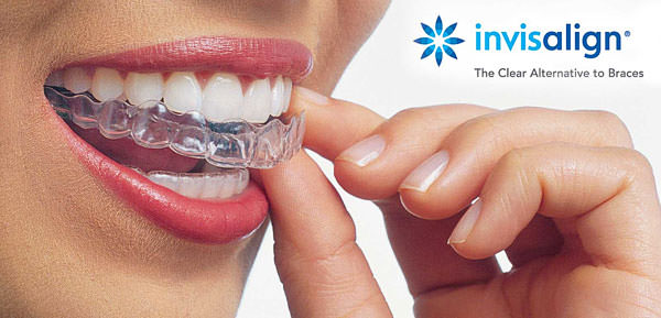 LAKESIDE ORTHODONTICS in Wädenswil near Zurich propose Invisalign braces for adults for a discreet correction of the tooth placement.