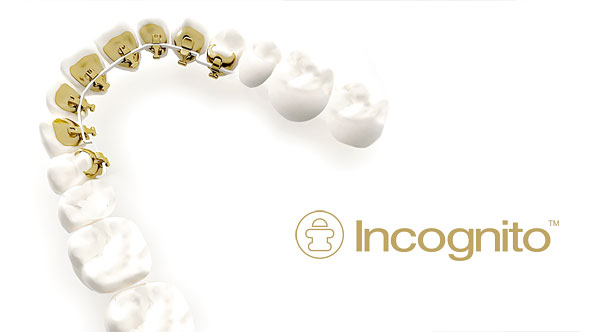 Incognito Hidden Braces are placed behind your teeth, so no one will ever know that you are wearing them. Perfect for adults, these braces are discreet and effective to straighten your teeth.