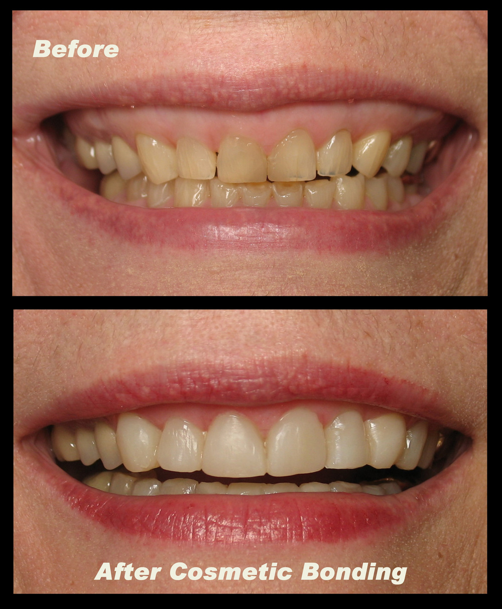 Cos Bdg After Braces (1).jpg