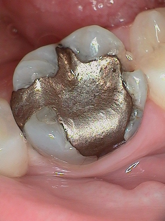 this is a typical old silver filling and you can see the tooth has broken at 2 o'clock.