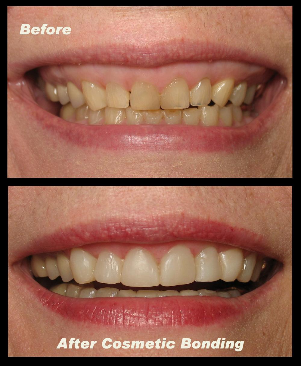 Stained Teeth Fiddlehead Dental