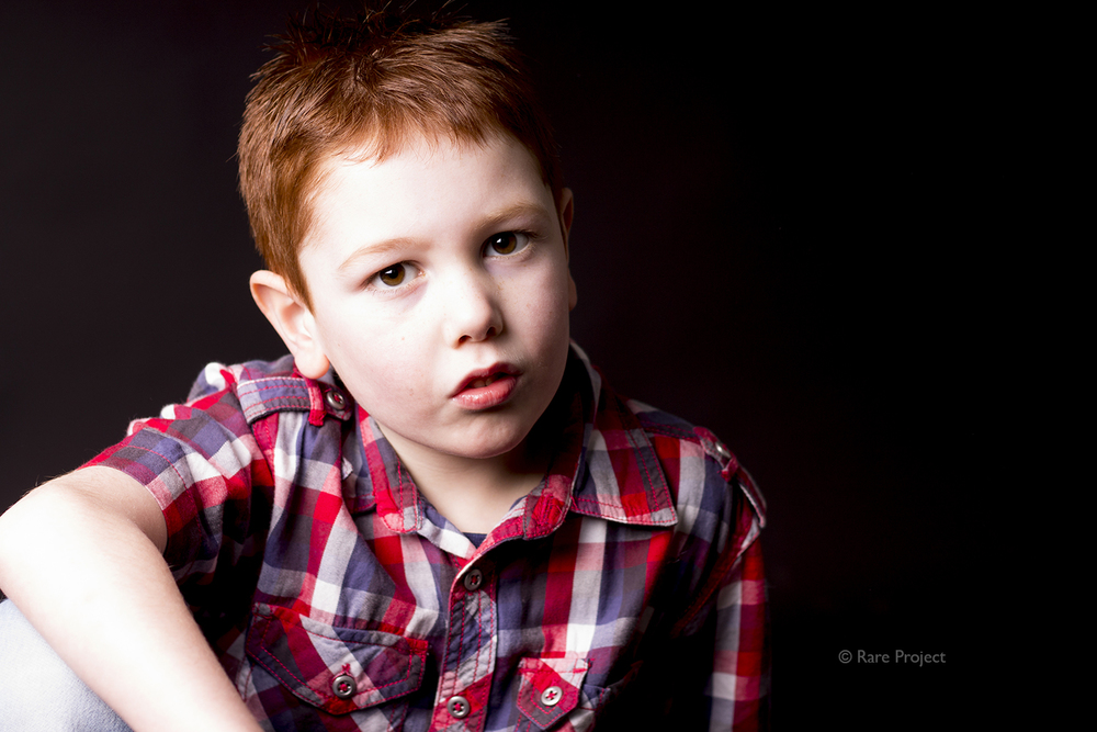 Young boy with Dravet syndrome