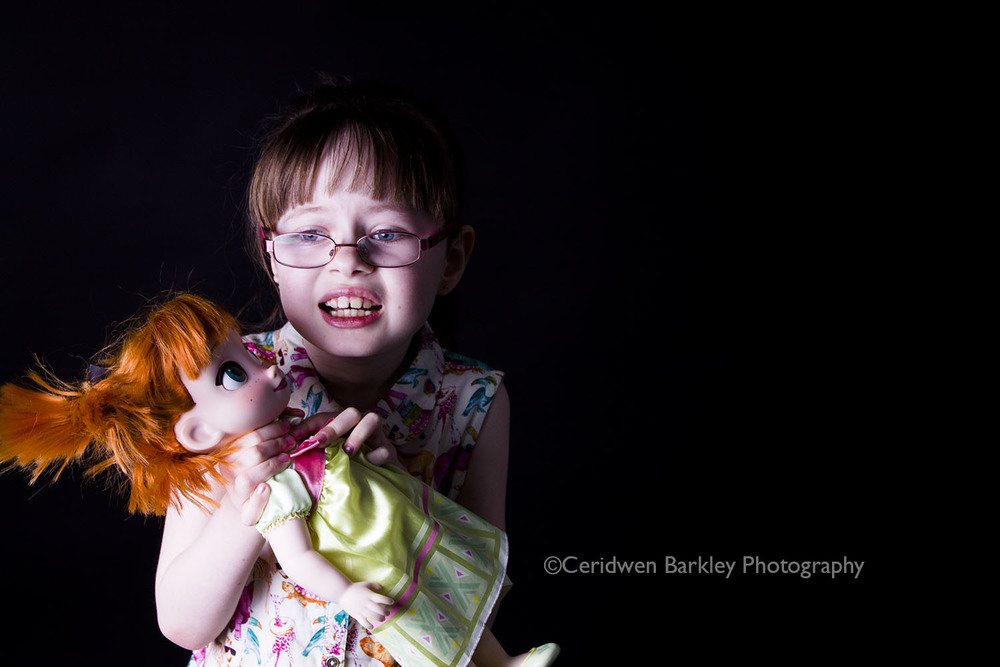 Girl with Ehlers Danlos Type 3