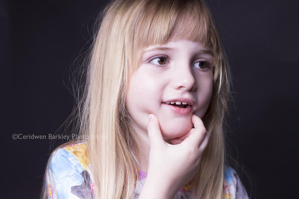 Little girl affected by HSV encephalitis