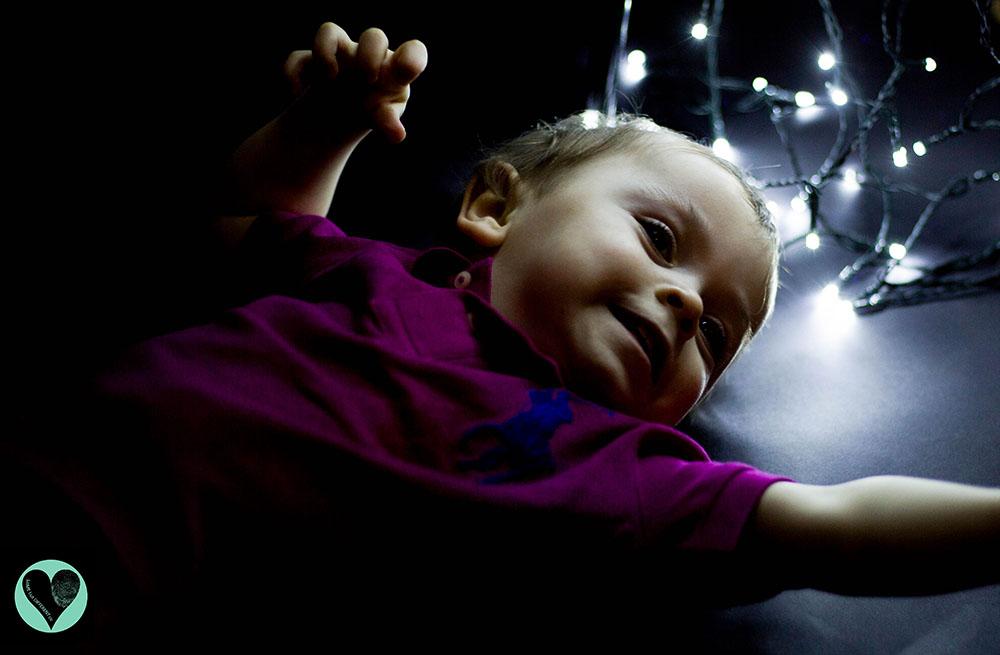 Toddler with Glutaric Aciduria Type 1 (GA1)