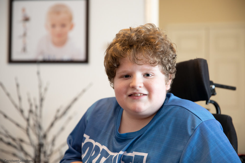 Young boy with Duchenne Muscular Dystrophy