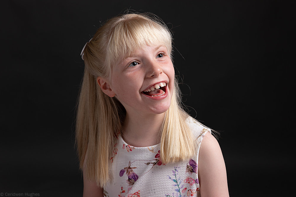 Young girl with Pitt Hopkin Syndrome