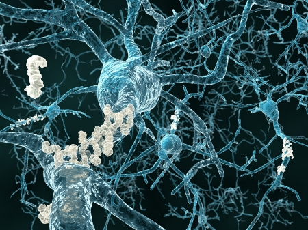 Amyloid Plaques Inhibiting Neurons  . Image from  Future Timeline