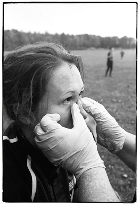 SPORTS | Nose Injury, Rugby, Gambier, Ohio