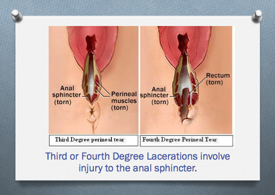 Will I tear…again? Delivery after anal sphincter injury — Elm Tree ...