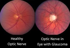 optic-nerve-comparison_290.jpg