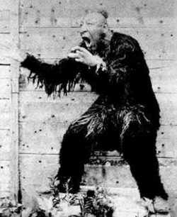 """William Henry Johnson, born with microcephaly, became part of Phineas's """"freak show,"""" where he was billed as """"the missing link"""" between humans and apes."""