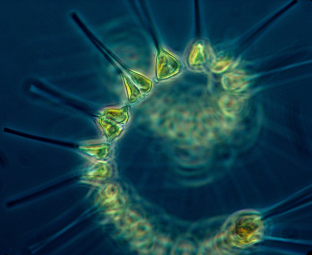 Phytoplankton - the foundation of the oceanic food chain. Image credit: NOAA MESA Project.
