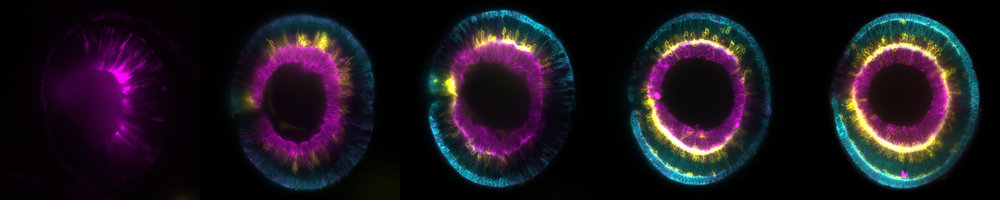 Watching you... The development of a single zebrafish retina, by Icha Jaroslav, Wikimedia.