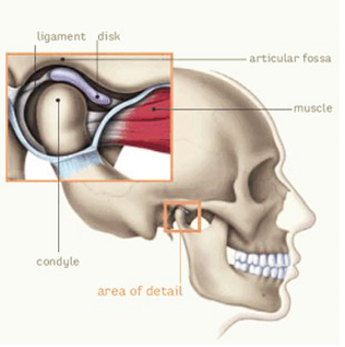 tmj.pain.prolotherapy