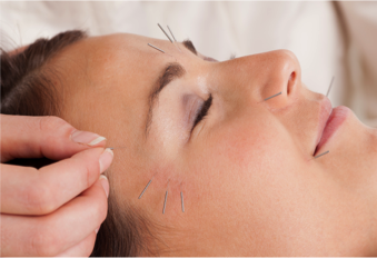 Facial Rejuvenation Cosmetic Acupuncture