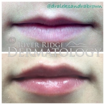 Before and After (unedited video and photos of an actual River Ridge Dermatology patient). *INDIVIDUAL RESULTS MAY VARY