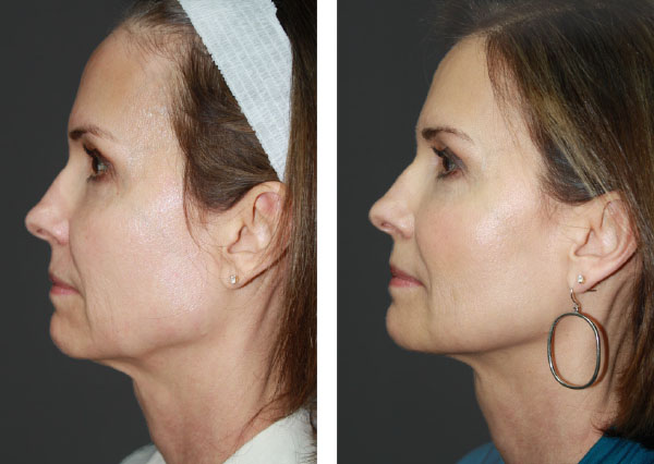 Before and After (unedited photos of an actual River Ridge Dermatology patient). *INDIVIDUAL RESULTS MAY VARY