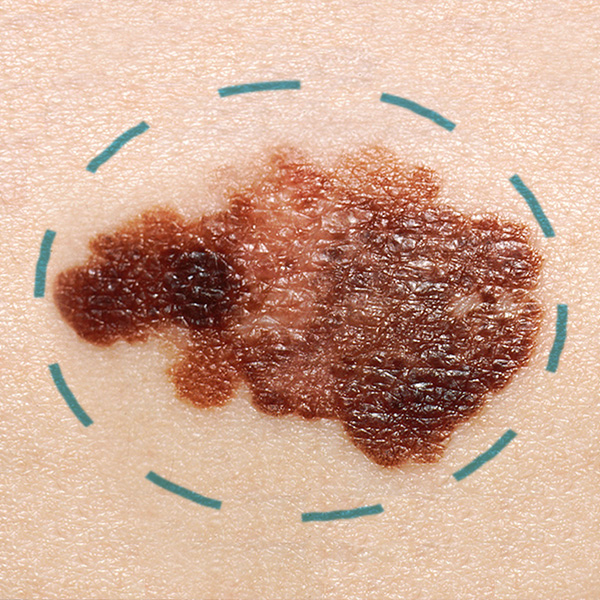 An abnormal mole with a circle around it