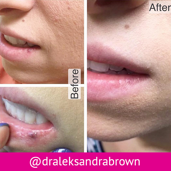 Before and after: laser removal of an angioma from a patient's lower lip.