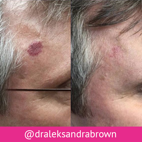 Before and after: Pulsed Dye Laser (PDL) treatment. (Unedited photos of an actual River Ridge Dermatology patient. Individual results may vary.)