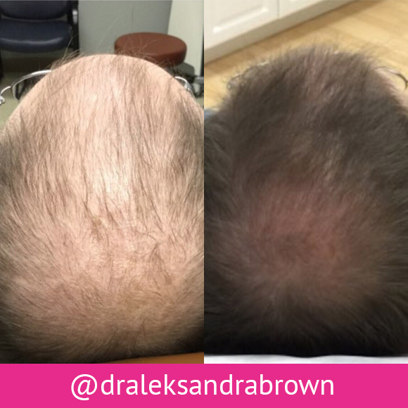 Before and after: Platelet rich plasma (PRP) is used with conventional topical and oral medications to treat hair loss. We usually recommend 4 monthly sessions followed by quarterly sessions, decreasing from there depending on patient response. (Unedited photos of an actual River Ridge Dermatology patient. Individual results may vary.)