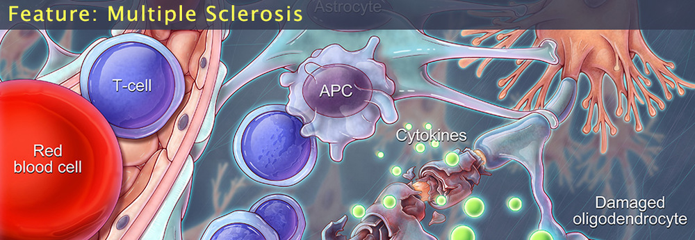 JC7467 - An illustration of multiple sclerosis, an autoimmune disease that damages the central nervous system and leads to muscle spasms, loss of balance and coordination, numbness, and muscle weakness. In MS patients, myelin reactive T-cells cross the blood brain barrier and bind to antigen presenting cells in the brain. This results in a release of pro-inflammatory cytokines which damage myelin sheaths and the cells responsible for producing myelin (oligodendrocytes).     Images © Science Source