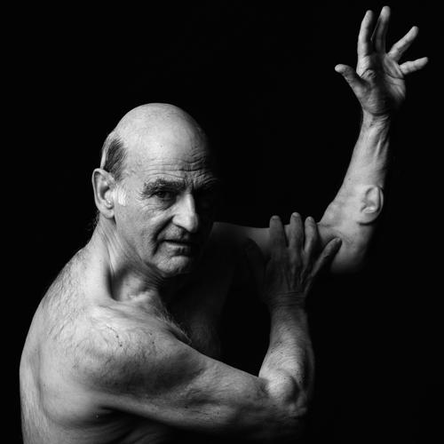 Ear On Arm.Venice International Performance Art Week 2016.Photographer - Piero Viti.Stelarc