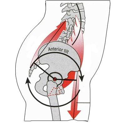 anterior-pelvic-tilt-and-lordosis