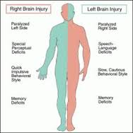 The effect of a right or left sided brain injury.